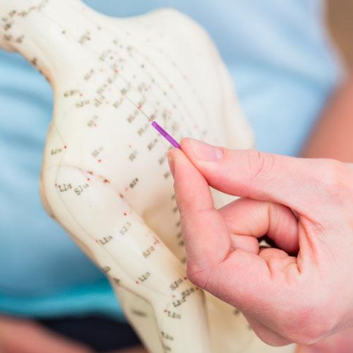 Die Akupunkturpunkte des menschlichen Körpers