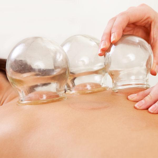 Traditionelle Chinesische Medizin (TCM) - Akupunktur